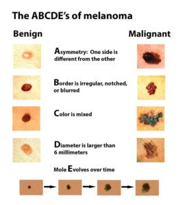Melanoma Screening: All Ages, Races Should Be Screened
