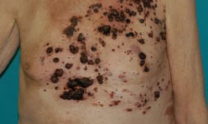 Why Primary Melanoma Sometimes Can't Be Found?