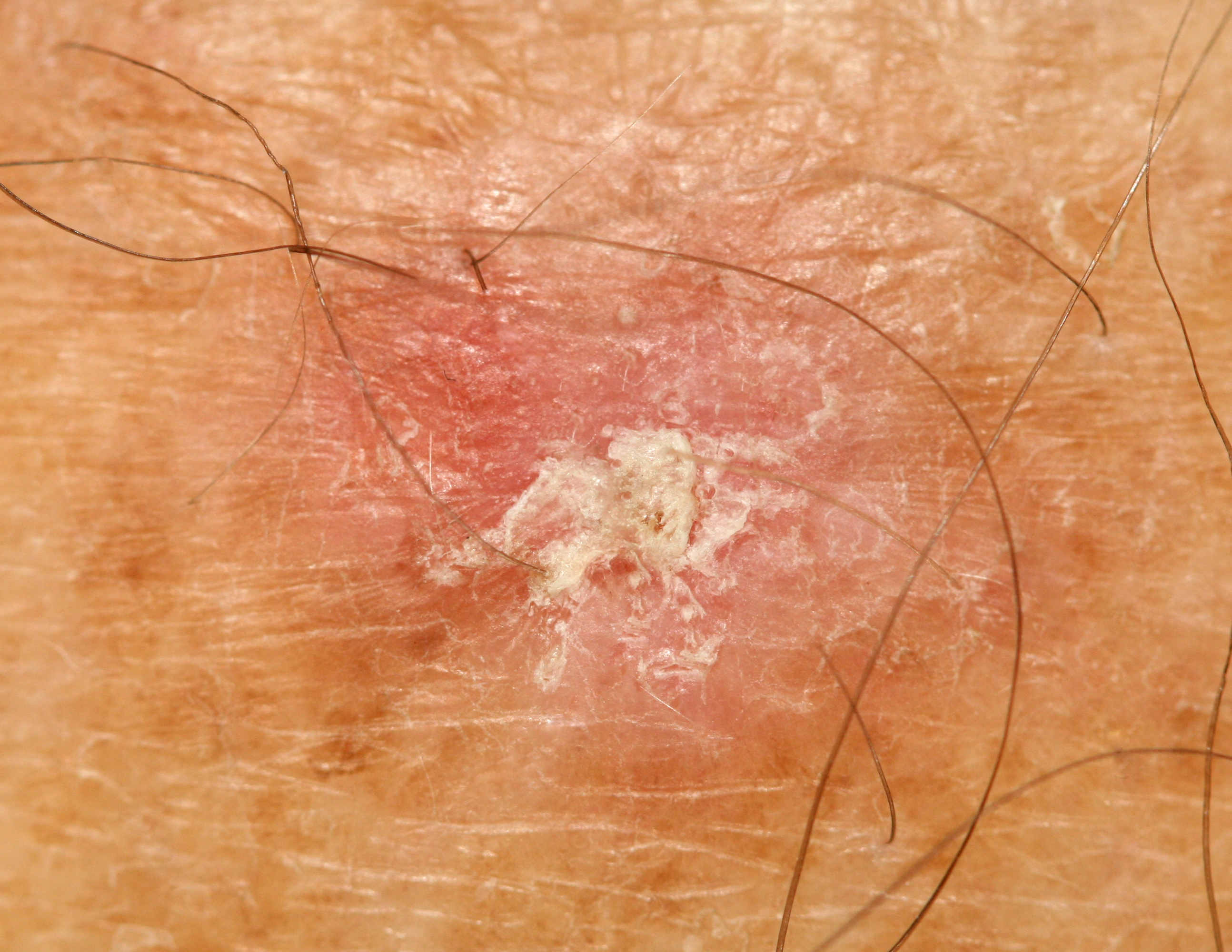 Can Skin Cancer Come and Go?