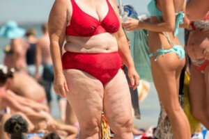 "Fatkini vs. ""Deadkini"" for Empowering Fat Women"