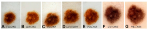 How Fast Can Melanoma Change Visibly to Naked Eye?