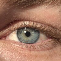 Cause of Eye Freckles that You Can See in a Mirror