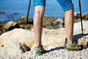 Can Lean People Who Exercise Get Varicose Veins?