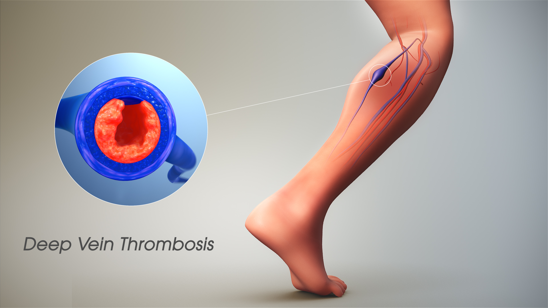 Why Must DVT Patients Take Blood Thinners for Six Months?