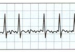 Heart Racing in Middle of Sleep: 200 Beats/Minute