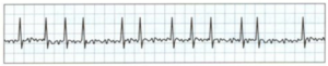 Elevated Troponin Range from Atrial Fibrillation Episodes