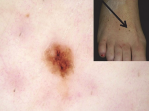 Can a Melanoma Mole Spontaneously Disappear or Regress?