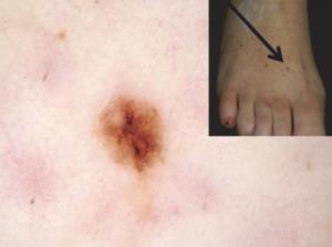 How to use bec5 on melanoma