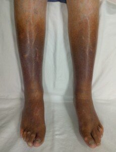 Can Weight Loss and Exercise Alone Cure Venous Insufficiency?