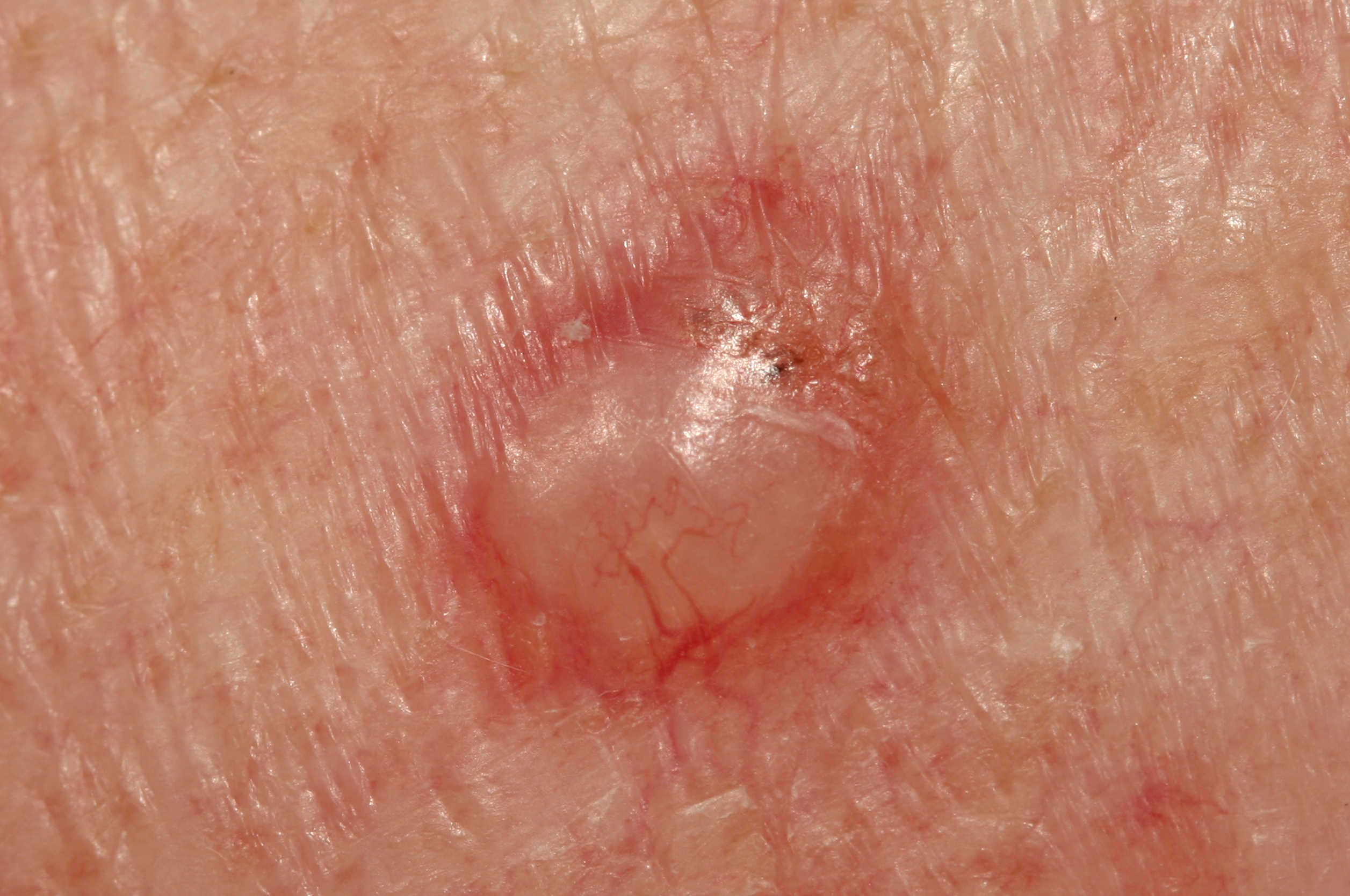 What Are the Odds of a Basal Cell Carcinoma Metastasizing?