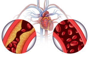 Natural Ways to Unclog Coronary Artery Soft Plaque