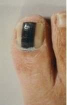Melanoma. Note the sharply demarcated border between the tumor and the nail, and the perfect rectangular shape of this thick band.