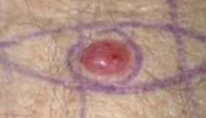 Hard Pimple that Won't Go Away After 2 Months May Be Cancer