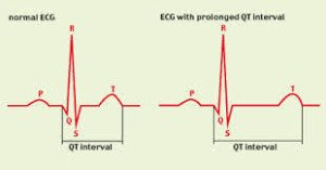 Study Confirms Prolongation of QT Interval With Citalopram ...