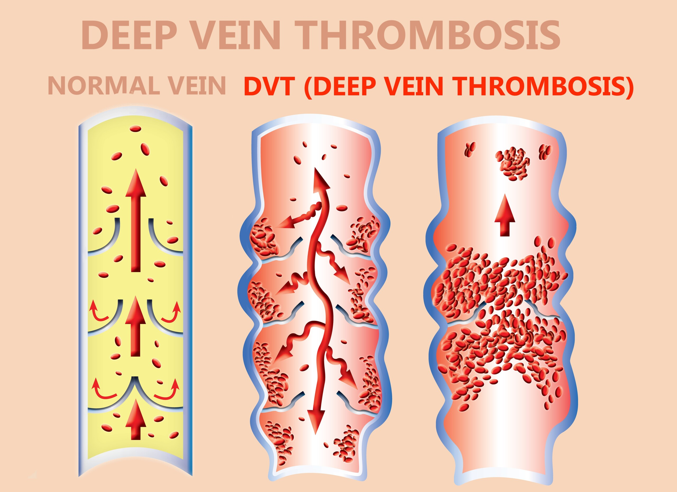Does Microscopic Colitis Increase Risk of a DVT ?