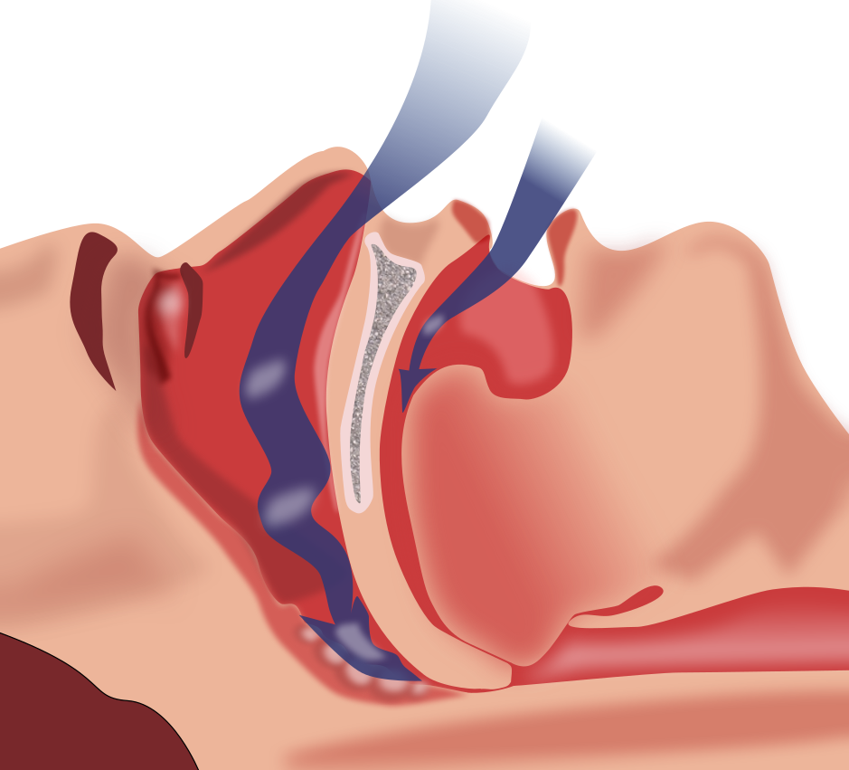 Repeatedly Strangled While Sleeping: Sleep Apnea's Dangers