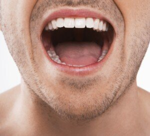 Should a Broken Molar Be Pulled? Sometimes Yes, Sometimes No