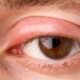 Itchy, Swollen and Peeling Eyelids: Causes and Solutions