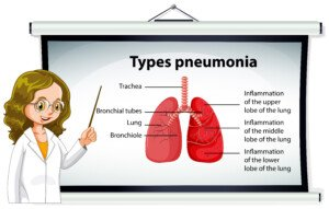 Can Non-Walking Pneumonia Go Away On Its Own?