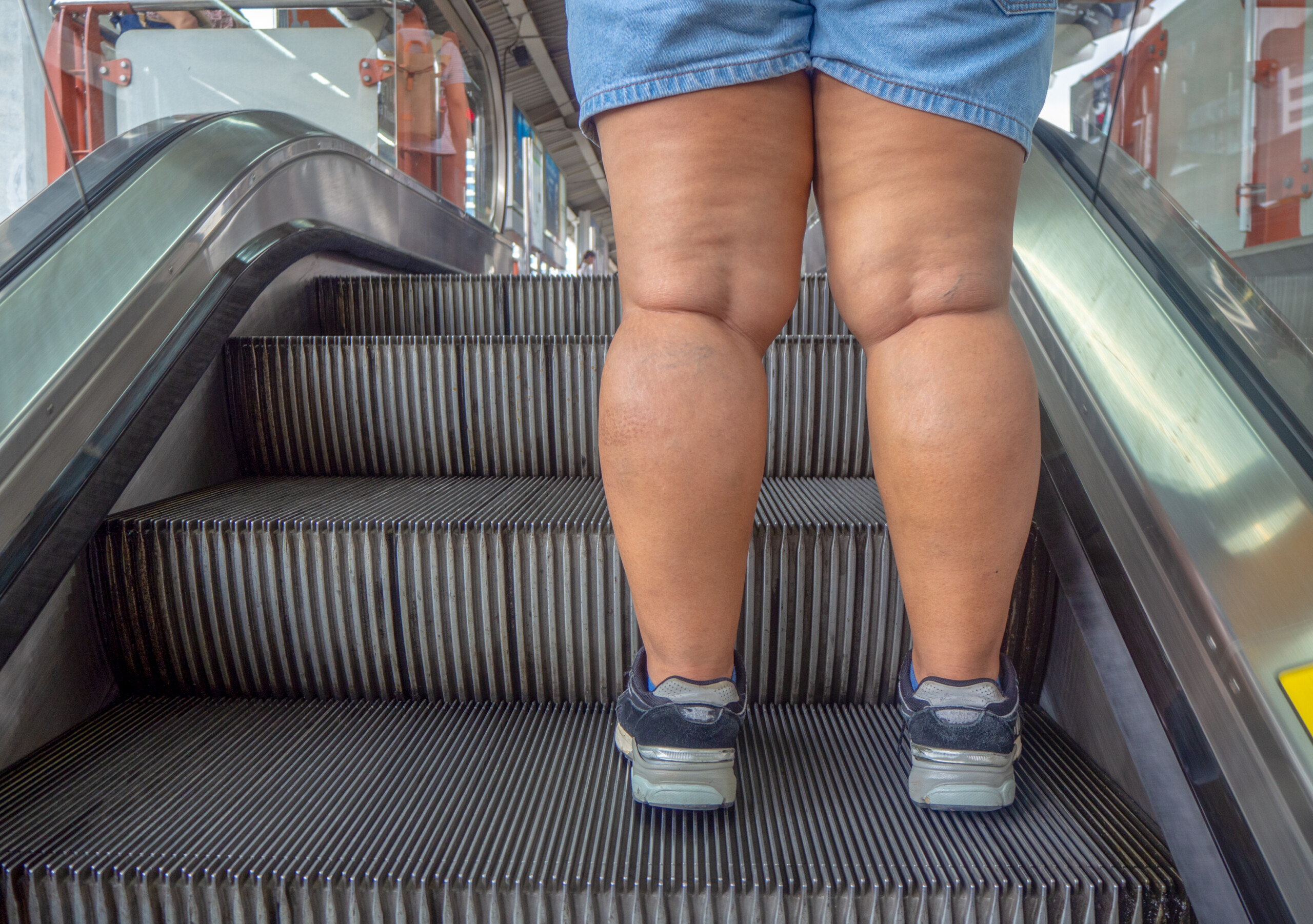 Edema from Fat Look Different than Edema from Heart Failure?
