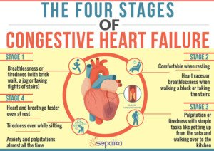 Best Kind of Exercise for Sufferers of Congestive Heart Failure