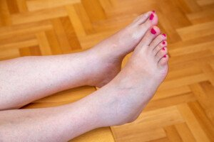 Benign Causes of Both Ankles Being Swollen & Puffy and Treatment