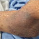 Why Do Very Elderly People Have Purple Bruises on Arms?