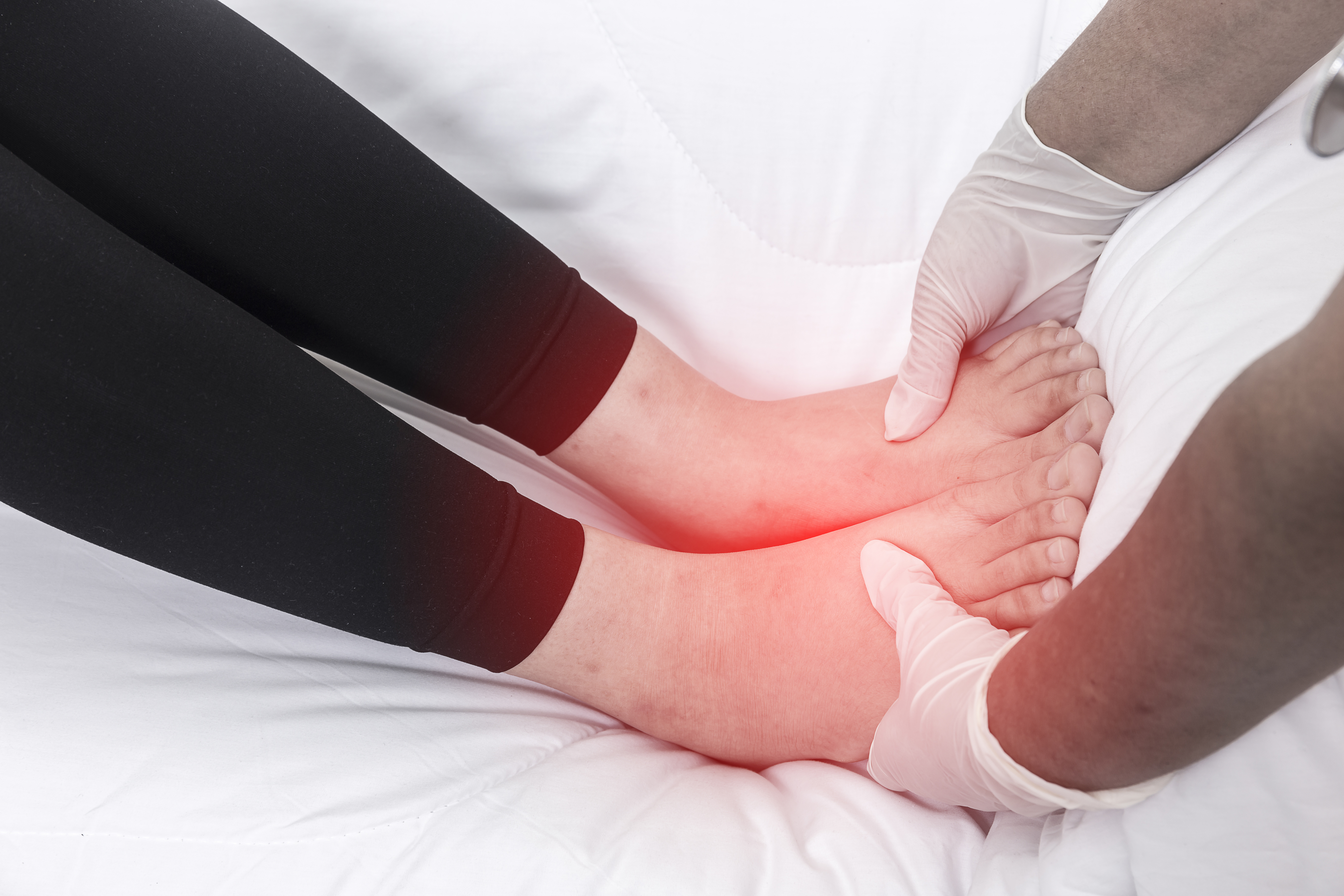 Can Menopause Cause Bilateral Edema in the Ankles & Calves?