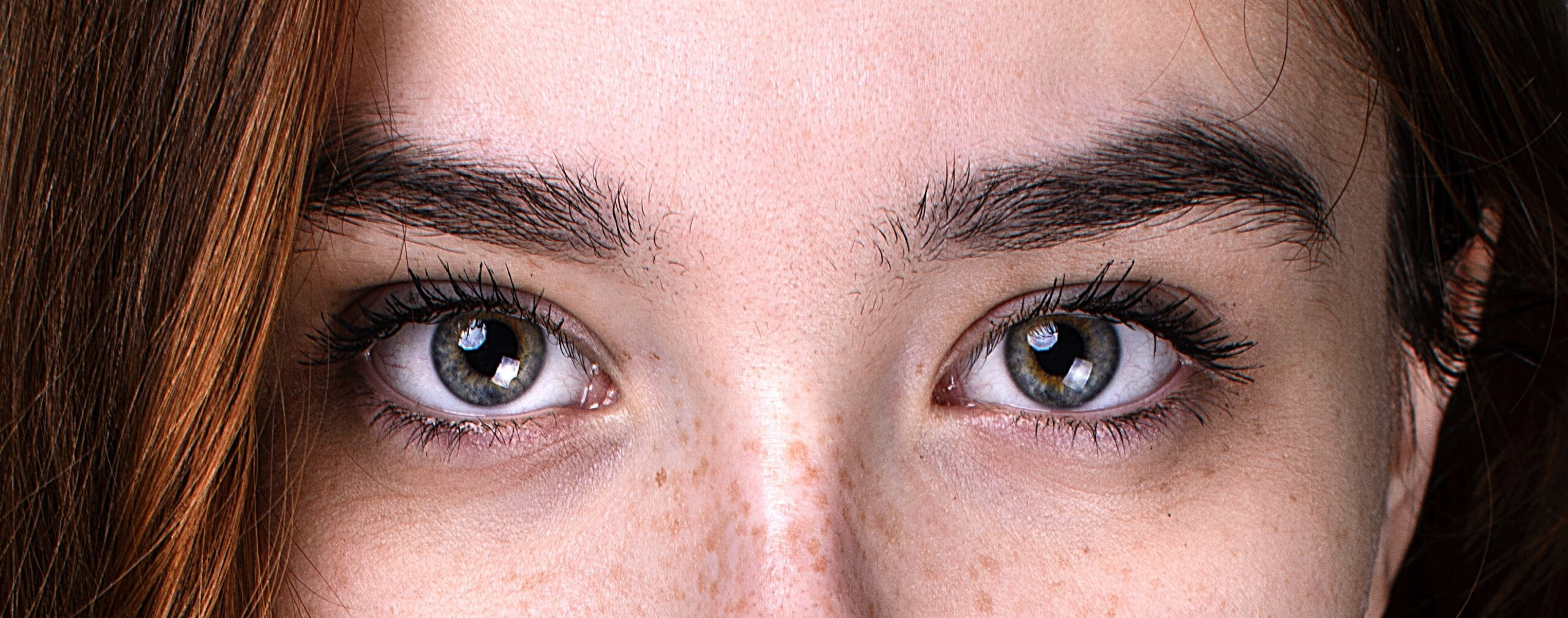 Headache Pain When Moving Both Eyes: Can Be Emergency Condition