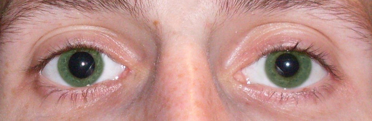 One Pupil Is Dilated, Cheek Tingling: Likely Causes