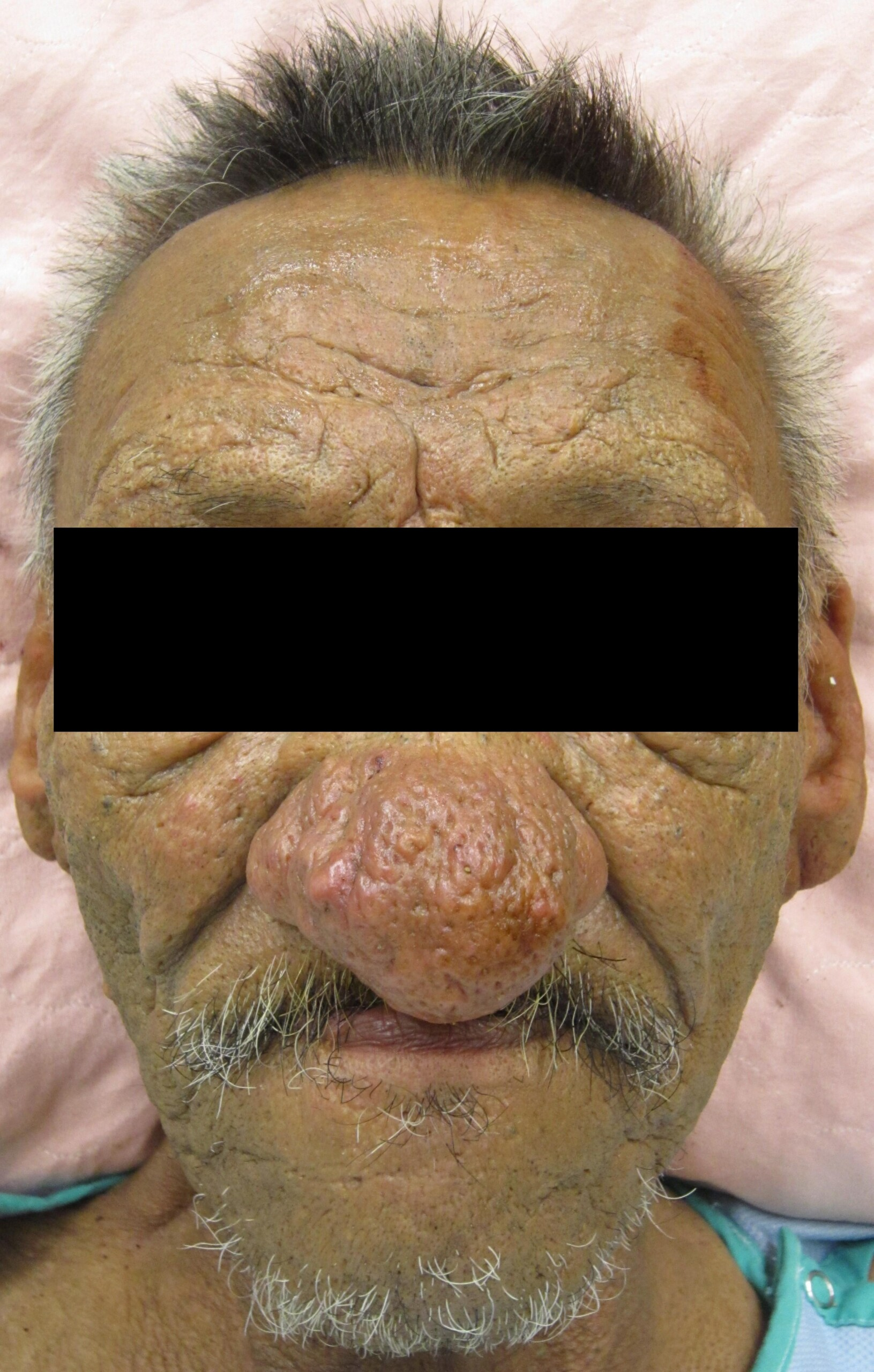 What is Rhinophyma and Its Link to Skin Cancer