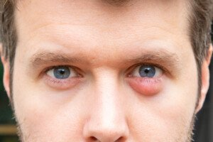 Bump Under Eyelid Skin Cancer Or Chalazion Cyst Scary Symptoms