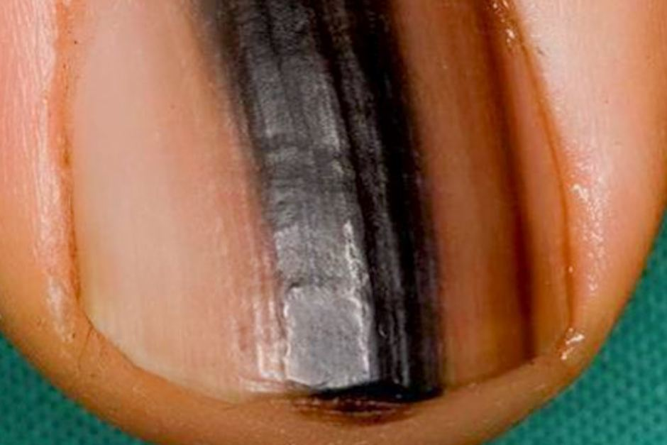 What Are All the Different Colors that Nail Melanoma Can Be  ?