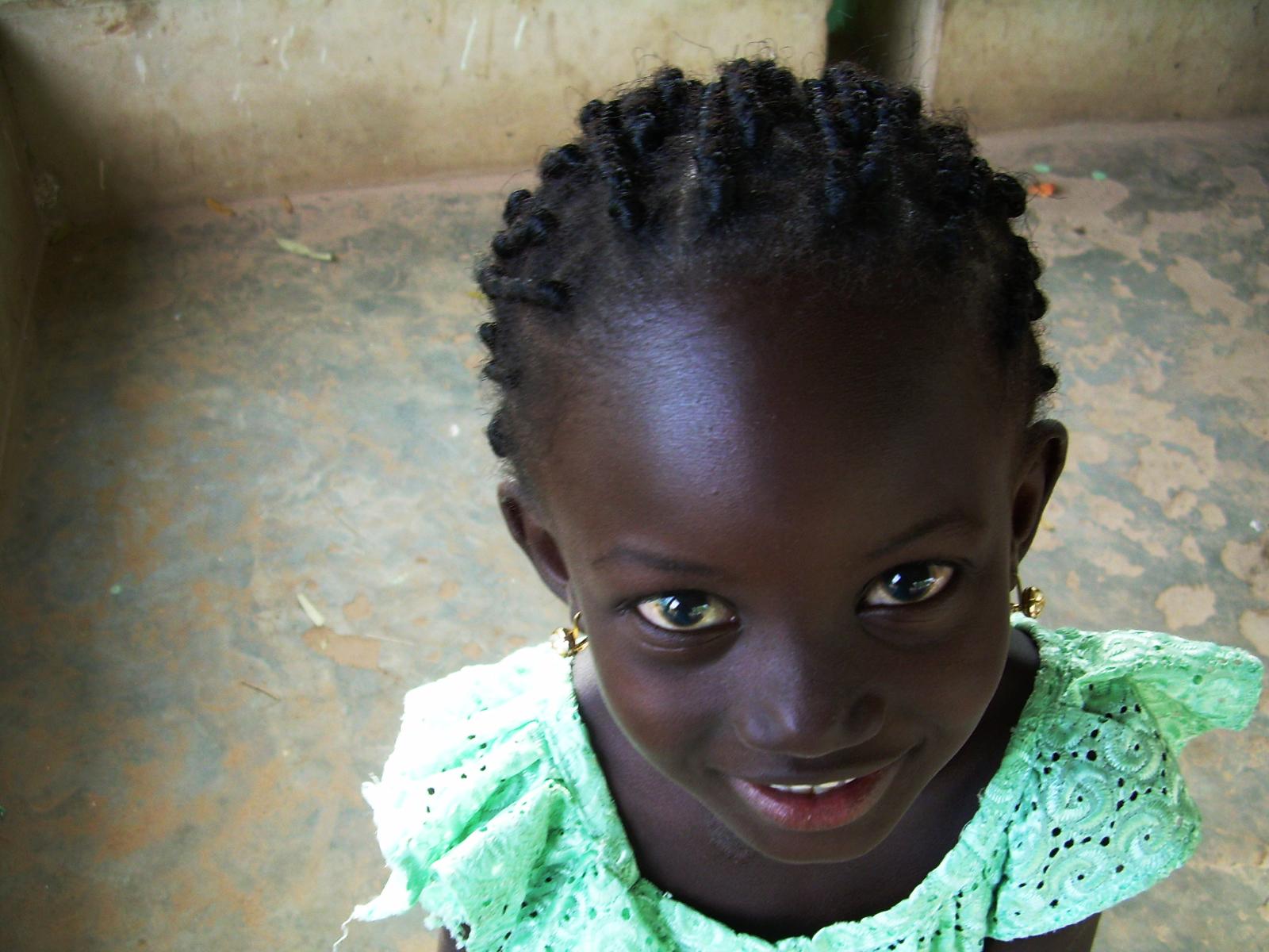 How Rare Is Melanoma in Dark Skinned Children?