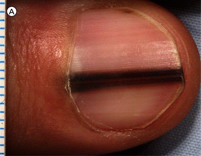 Two Big Warning Signs You May Have Nail Melanoma