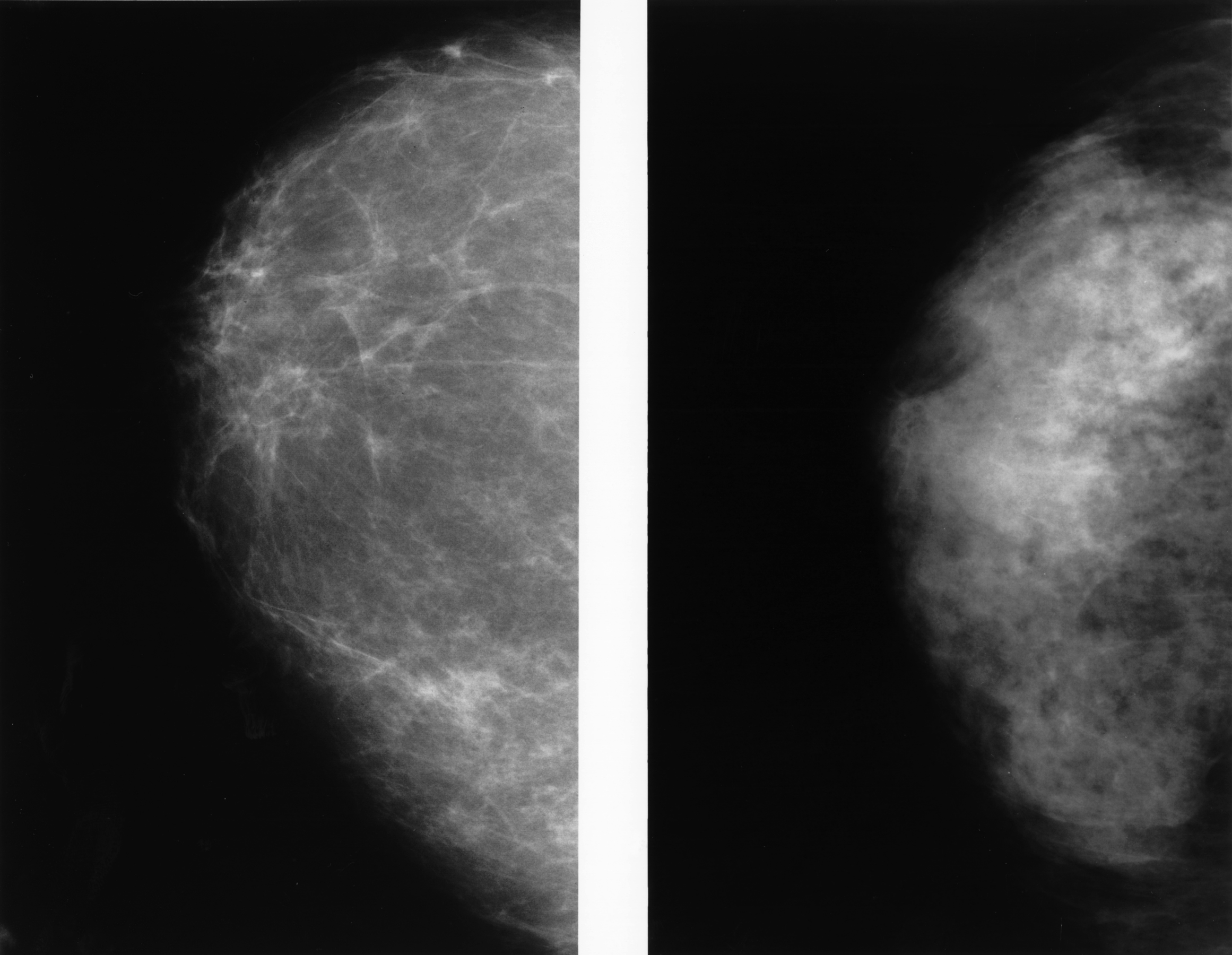 Why Don't More Doctors See Dense Breasts As Risk for Cancer?