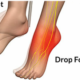 Foot Drop from Pinched Nerve vs. ALS: Telling the Difference