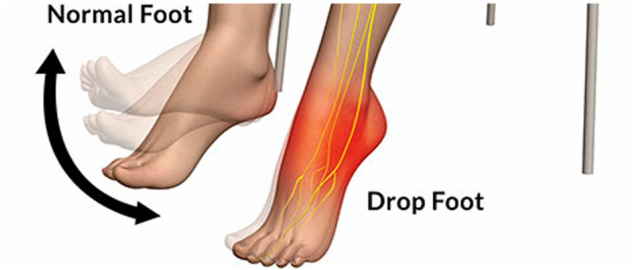 Muscle Twitching Fear: Foot Drop Strength Test Guidelines