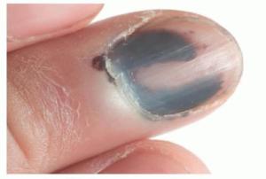 nail melanoma