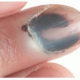 Do ALL Nail Melanomas Have a Hutchinson's Sign?