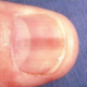 Pink Line or Stripe On Fingernail or Toenail Can Be Melanoma