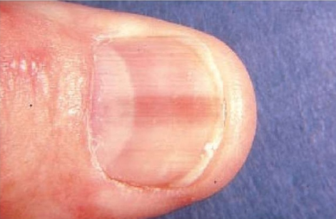 Pink Line or Stripe on Fingernail or Toenail Can Be Melanoma