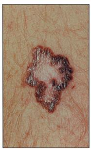 What is Central Regression in a Melanoma?