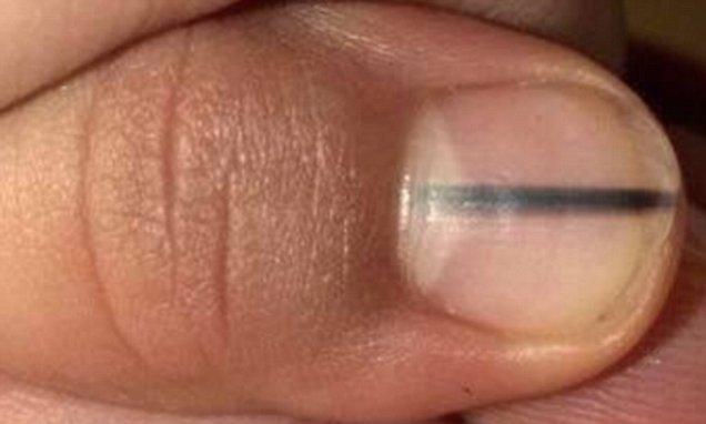 Warning Signs a Nail Melanoma Was Misdiagnosed As Benign