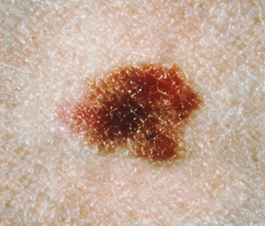 This mole sure looks like a melanoma. There's at least five colors; it's asymmetrical; and the surface looks variegated. But it's only an atypical mole.