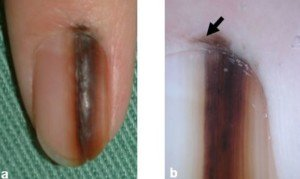 Nail melanoma. Another example of Hutchinson's sign.