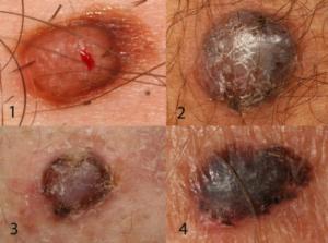 Close-ups of the four nodular melanomas shown above.