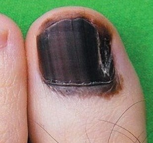 What Is the Reliability of Biopsy for Nail Melanoma?