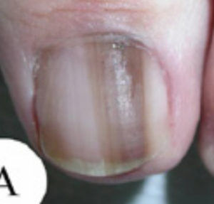 Nail melanoma. Note the Hutchinson's sign at the cuticle or nail fold. There's a second Hutchinson's sign at the top of the nail, in the skin.