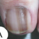 Can Melanoma Under a Nail Be Diagnosed with the Naked Eye ?